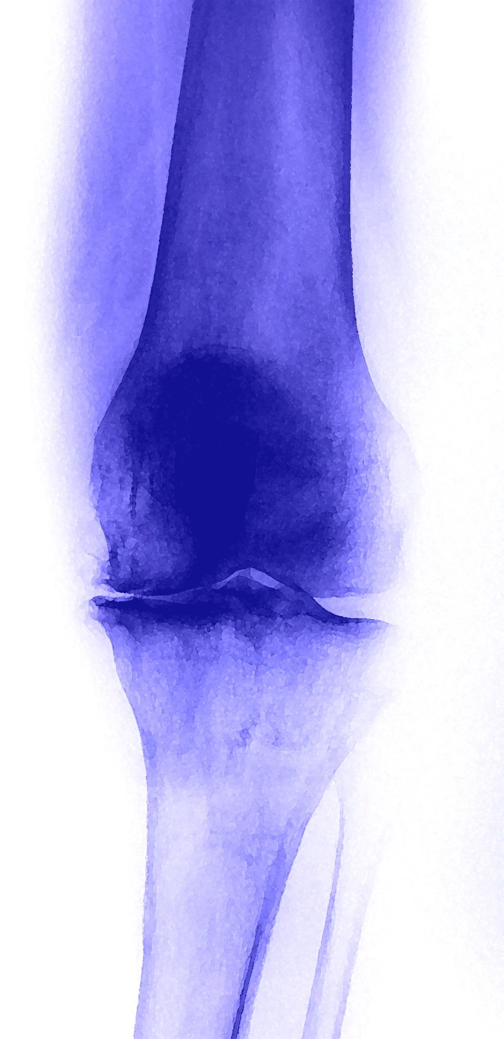 protesi ginocchio durata intervento